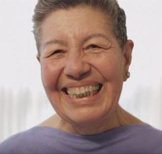 קלוטילדה - חולת סרטן שד שקיבלה טיפול המקובל בסרטן ריאה